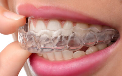 Invisalign Near Me | Braces vs. Invisalign