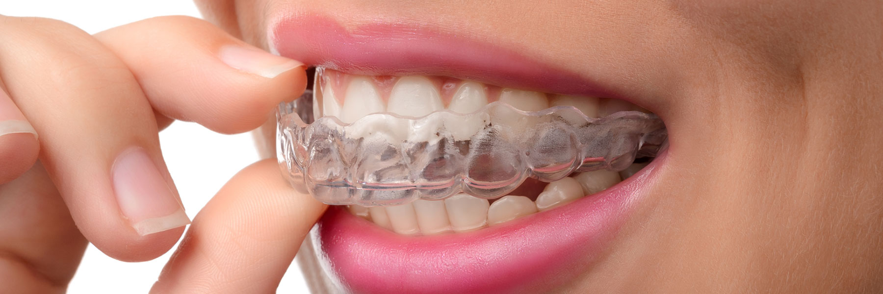 Invisalign is an alternative for braces